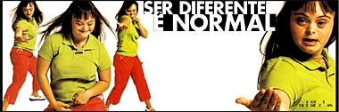To be different is normal